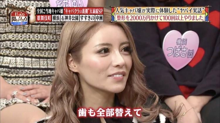シャンパンタワーで1億円を荒稼ぎ! 歌舞伎町ナンバー1キャバ嬢
